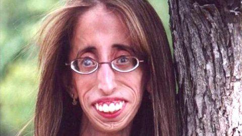 Θυμάστε την πιο άσχημη γυναίκα του κόσμου; Δείτε τι έκανε και όλοι…. (ΒΙΝΤΕΟ)