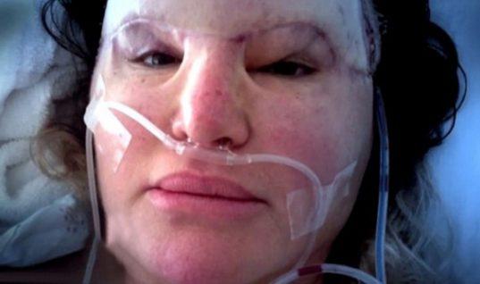Ο αγώνας μιας γυναίκα που παραμορφώθηκε και σχεδόν τυφλώθηκε για να σβήσει τις ρυτίδες της και το μήνυμα που στέλνει