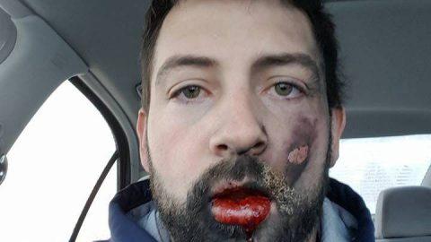 ΣΟΚ: Ανατινάχτηκε το ηλεκτρονικό τσιγάρο στο στόμα του!