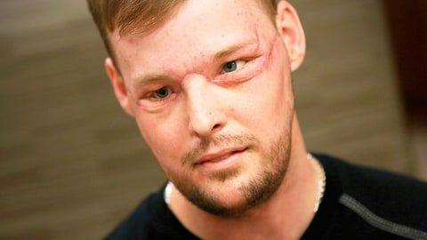 Υποβλήθηκε σε 56ωρη μεταμόσχευση προσώπου και άλλαξε η ζωή του! (vid)