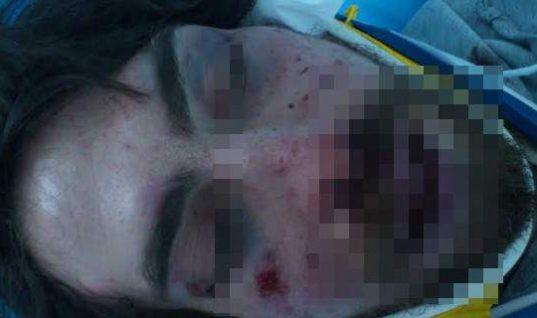 Σοκαριστικός ξυλοδαρμός φοιτητή από κουκουλοφόρους στην Αθήνα – Kαταγγελίες ότι ήταν τάγμα χρυσαυγιτών (σκληρές εικόνες)