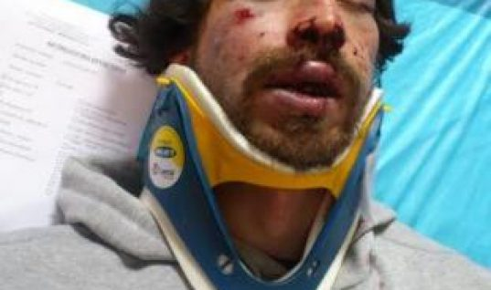 Μετακλητός υπάλληλος στη Βουλή ο συλληφθείς για τη δολοφονική επίθεση στον φοιτητή