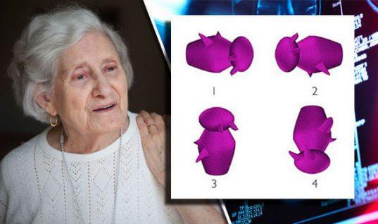 Ποιο σχήμα διαφέρει από τα άλλα; ΑΥΤΟ το τεστ «προβλέπει» το Αλτσχάιμερ λένε επιστήμονες! (εικόνες)