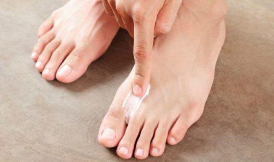 Πώς φεύγουν οι μύκητες στα πόδια