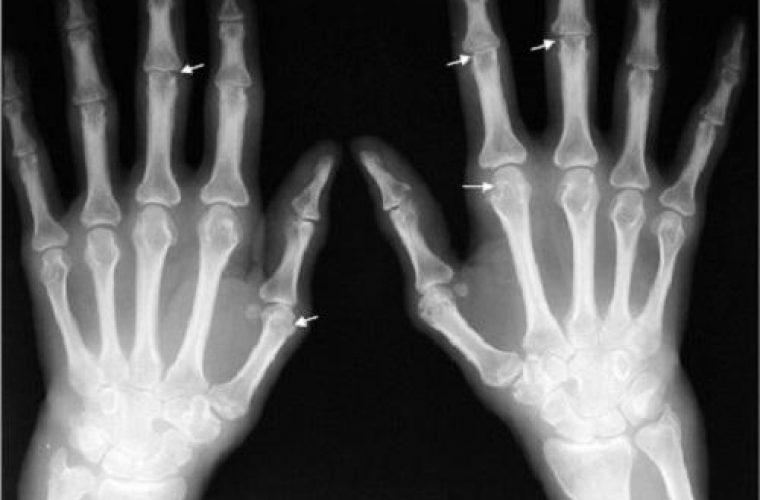 Ουρική αρθρίτιδα: Προσοχή σε 4 καθημερινά ροφήματα που αυξάνουν τον κίνδυνο