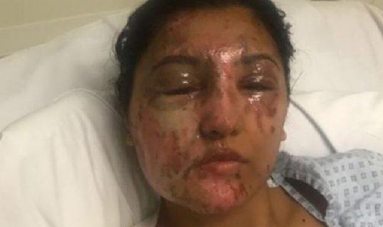 Ξανά όμορφη! Η εντυπωσιακή ανάρρωση της Ινδής που δέχθηκε επίθεση με οξύ (εικόνες)