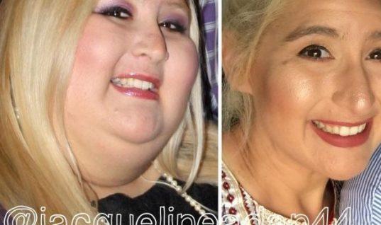Έχασε 159 κιλά αλλά το αποτέλεσμα ήταν σοκαριστικό! (εικόνες)