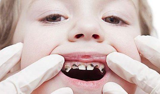 Ποιες τροφές καταστρέφουν τα δόντια των παιδιών