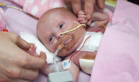 Μωρό γεννήθηκε με την καρδιά έξω από το σώμα του και κατάφερε να επιζήσει
