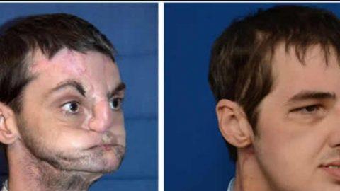 Γαλλία: Έμεινε ενάμιση μήνα χωρίς πρόσωπο αφού το σώμα του απέρριψε το μόσχευμα!