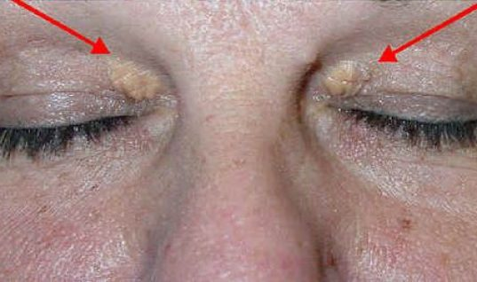Τι αποκαλύπτουν για την υγεία σας αυτά τα σημάδια στα μάτια