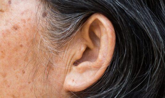 Εάν έχετε αυτό το σημάδι στο αυτί σας, μπορεί να κινδυνεύετε από εγκεφαλικό