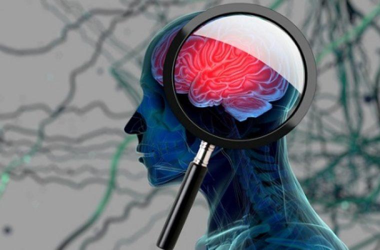 Ανεύρυσμα εγκεφάλου: Τα αθώα σημάδια που φωνάζουν και αγνοούμε