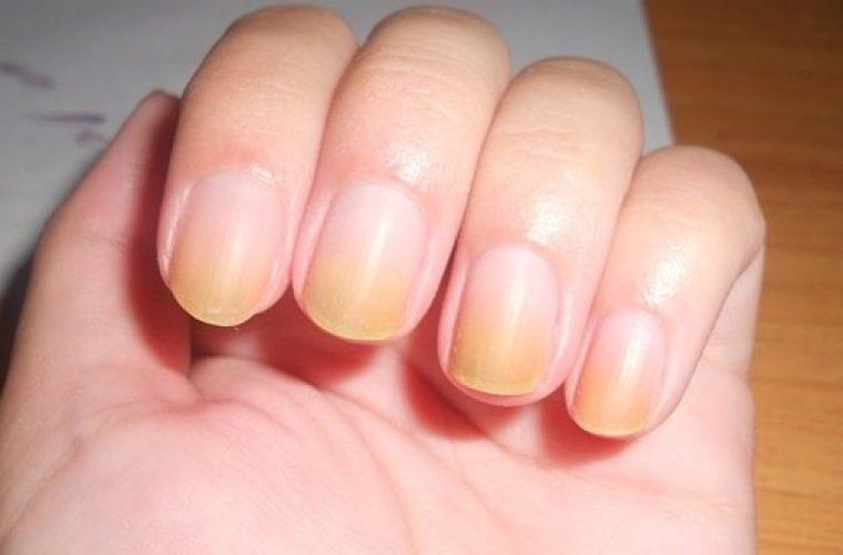 Κιτρινισμένα νύχια; Κάντε λεύκανση με 8 φυσικούς τρόπους στο σπίτι!