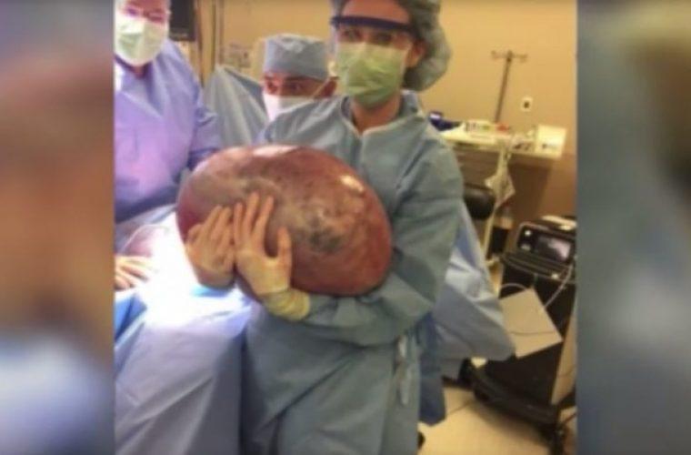 Έπαιρνε συνεχώς βάρος ανεξήγητα: Δε φαντάζεστε τι εντόπισαν οι γιατροί στο σώμα της! (εικόνες)