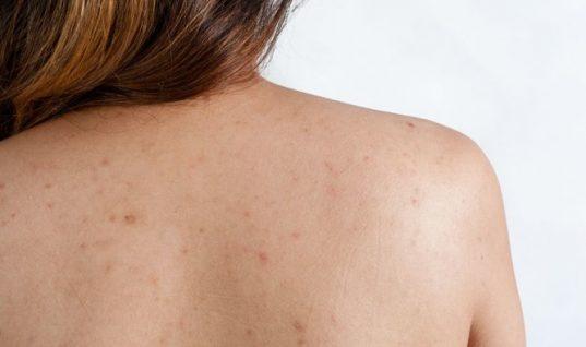 Τι να κάνετε για τα σπυράκια στην πλάτη λόγω ζέστης και ιδρώτα το καλοκαίρι