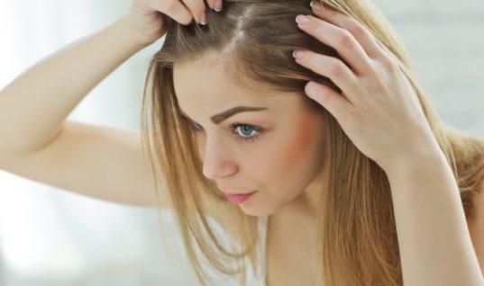 Τον Ιούλιο χάνετε περισσότερα μαλλιά – Δείτε γιατί!