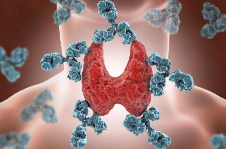 Θυρεοειδίτιδα Χασιμότο: Τι είναι – Ποια τα πρώτα συμπτώματα