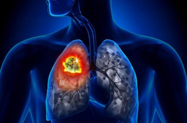 Καρκίνος του πνεύμονα: Συναγερμός στην Ελλάδα, 7.000 νέα κρούσματα το χρόνο