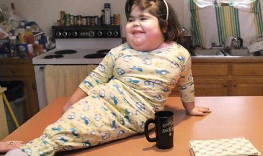 Η ζωή και ο θάνατος του κοριτσιού που δεν είχε πόδια, αλλά πτερύγιο γοργόνας (vid)
