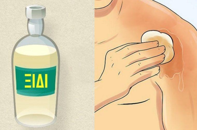 18 θεραπευτικές ιδιότητες που έχει το ξίδι και ελάχιστοι γνωρίζουν