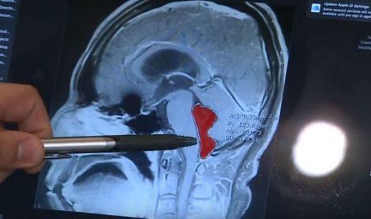 Είχε έντονους πονοκεφάλους που οδηγούσαν σε εμετούς- Δεν πίστευαν στα μάτια τους οι γιατροί με αυτό που είδαν στον εγκέφαλό