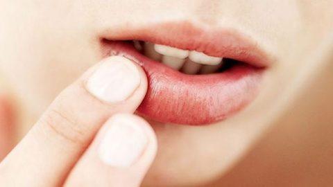 Έτσι θα επανορθώσεις σε χρόνο dt τα σκασμένα χείλη