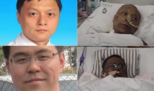 Απίστευτη ιστορία Κινέζων γιατρών με κορωνοϊό: Το δέρμα τους άλλαξε χρώμα μετά από νοσηλεία