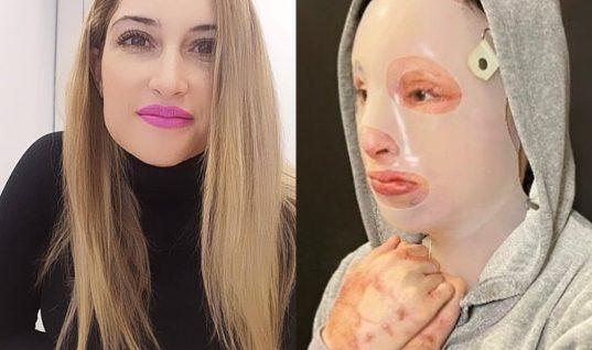 Η Ιωάννα Παλιοσπύρου δείχνει για πρώτη φορά το πρόσωπό της μετά την επίθεση με το βιτριόλι (σκληρές εικόνες)