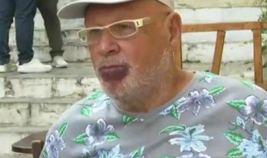 Λάκης Παπαδόπουλος: Η αποκάλυψη για το σημάδι στα χείλη